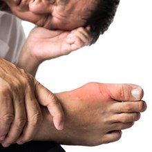Lesinurad comes up trumps in gout treatment