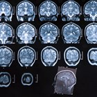 Cortical lesions linked to disability in MS