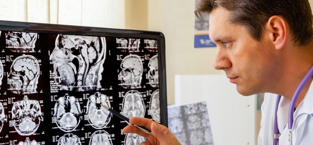 Epilepsy rate high after stroke