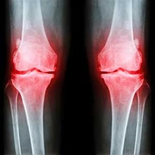 New therapy offers hope in osteoporosis