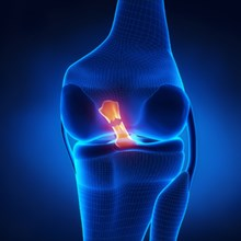 Early ACL injury boosts lifetime OA risk