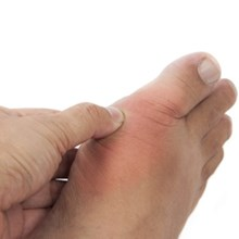 Study finds poor gout treatment in primary care