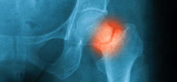 Which antihypertensive is best in osteoporosis?
