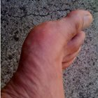Coroner issues warning over gout drug