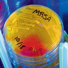 What's best for MRSA skin infections?