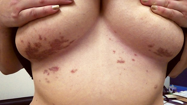 Case Report: A rare and puzzling rash