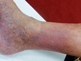 Quiz: A tight, swollen red leg