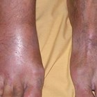 How long does it take for gout symptoms to appear? The answer will surprise you