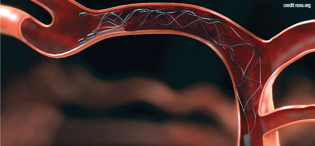 Endovascular therapy benefits 'unequivocal': study