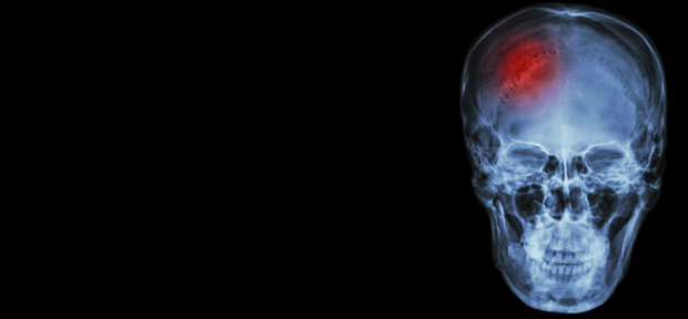 ICH study uncovers left vs right mortality riddle