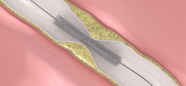 Stenting as good as surgery for stroke prevention