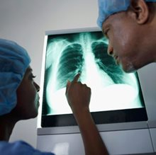 Expert questions surgery for mesothelioma