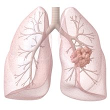 Study compares lung cancer treatments
