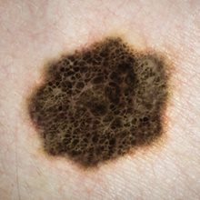 Melanoma trial heralds 'new era' in cancer treatment