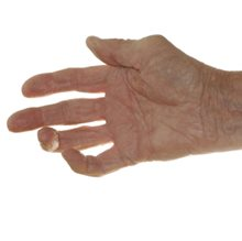 Hand exercises plus normal drug therapy effective in RA