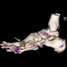 CT scans find missed gout