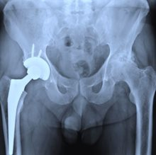 Hip arthroplasty in JIA an 'excellent' option: study
